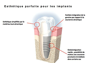 Chirurgie pré-implantaire à Paris 15