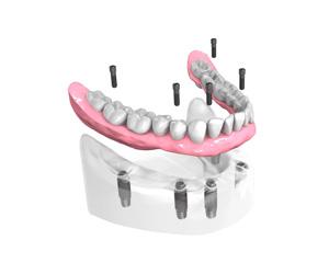 Remplacer toutes les dents absentes ou abîmées - Dentiste Paris 15