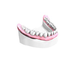 Remplacer plusieurs dents absentes ou abîmées - Dentiste Paris 15